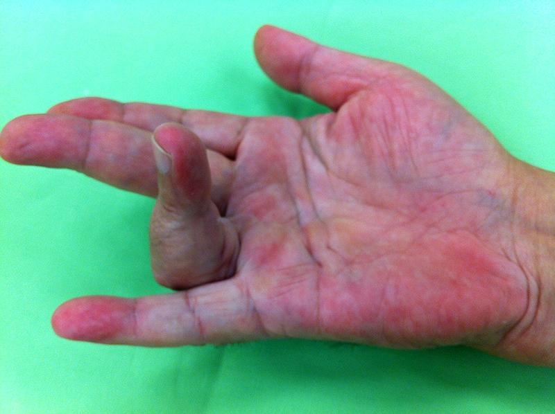 a kéz csuklóízületeinek betegségei)