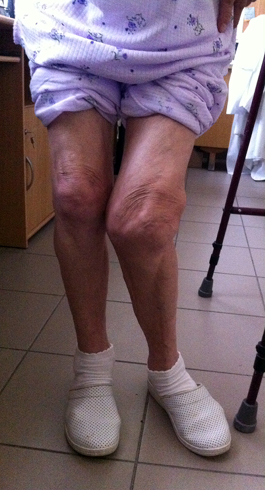 térdízület betegségei)